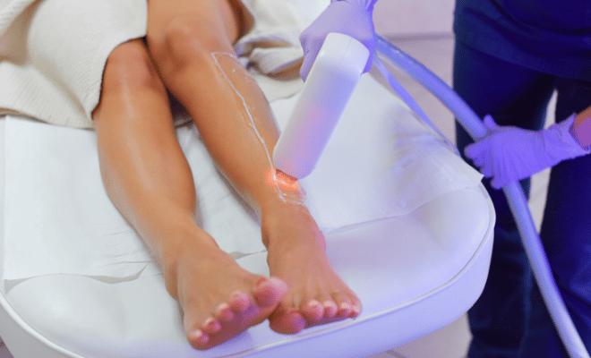 prednosti laserske epilacije